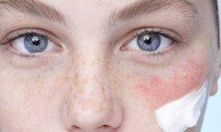 Тонкая кожа на лице и под глазами: правильный уход и укрепление