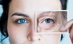 Как убрать гусиные лапки вокруг глаз в домашних условиях раз и навсегда