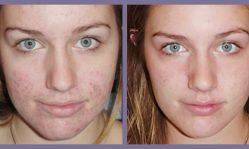 Лазерный пилинг лица: что умеет чудодейственная процедура
