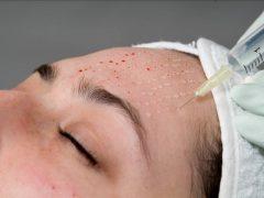 Биоревитализация лица: лучшая процедура омоложения