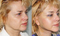 Как эффективно убрать брыли на лице в домашних условиях или в салоне
