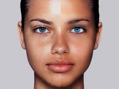 Жирная кожа лица: как лечить в домашних условиях