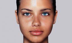 Жирная кожа лица: что делать и как лечить в домашних условиях