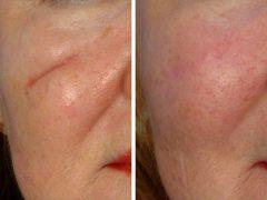 Крем от рубцов и шрамов на лице: как выбрать эффективное лечение