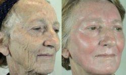 Химический пилинг лица: эффективно или нет, стоит ли делать
