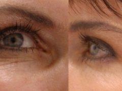 Маски от морщин вокруг глаз: эффективные рецепты после 30, 40 и 50 лет, готовим в домашних условиях