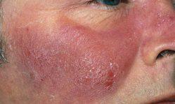 Воспаления на коже лица: эффективное лечение и определение причин