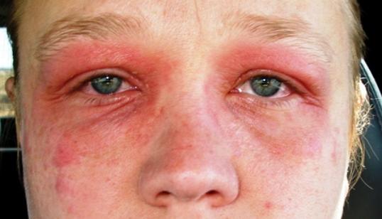 Рожистое воспаление лица симптомы и лечение 6
