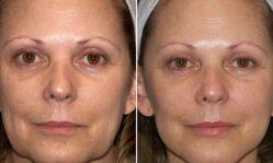 Подтяжка лица после 50 лет: эффективные аппаратные методики и домашние маски