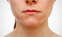 Герпес на лице: как вылечить быстро и причины возникновения