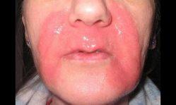 Ожоги на лице: правильное лечение