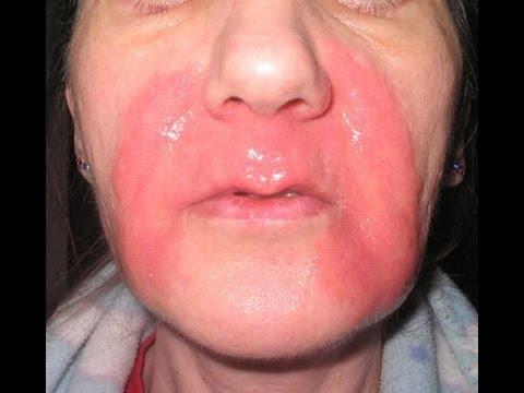 маска из яичного белка для лица от морщин рецепт