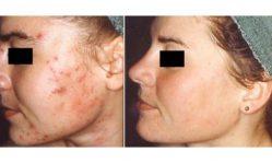 Гиперкератоз кожи лица: методики лечения, симптоматика, причины возникновения