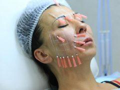Мезонити для подтяжки лица: что это или омоложение без побочных эффектов