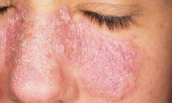 Псориаз на лице: эффективные способы лечения, мази, маски и рекомендации