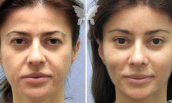 Эндоскопическая подтяжка лица: самая щадящая подтяжка на сегодняшний день