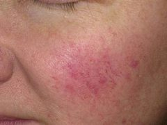 Розацеа на лице: эффективное лечение, причины, симптомы, народные средства