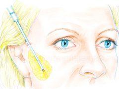 Липофилинг лица: безопасная и безвредная методика оздоровления