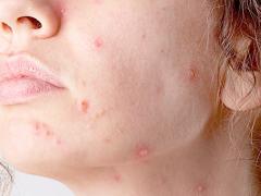 Кератоз кожи на лице: симптомы и методы лечения