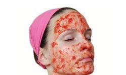 Томатная маска для лица: омоложение, очищение и отбеливание