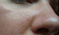 Крем для жирной кожи лица: как выбрать максимально эффективный