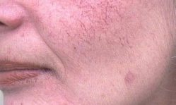 Купероз на лице: причины, методики лечения и профилактика