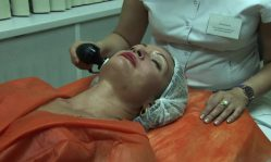 Радиочастотный лифтинг: безопасный и безболезненный метод подтяжки лица