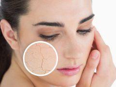 Крем для сухой кожи лица: правильный выбор в зависимости от возраста