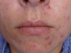 Подкожные прыщи на лице: причины появления и как избавиться быстро в домашних условиях
