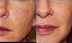 Лазерное удаление сосудистых звездочек на лице: безопасная методика эффективного избавления
