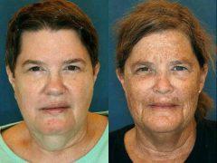 Фотостарение кожи лица: что это, как успешно защититься и бороться с явлением
