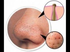 Черные точки на носу: как эффективно избавиться в домашних условиях