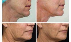 Коррекция овала лица: современные эффективные методики без последствий