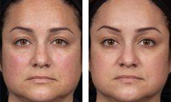 Феруловый пилинг: глубокое очищение кожи на натуральной основе