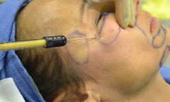 Коррекция морщин: как быстро и эффективно избавиться от морщин современными способами