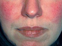Краснота на лице: как избавиться, причины и эффективное лечение