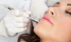 Микродермабразия лица: бережная и деликатная процедура избавления от дефектов