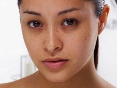 Как убрать синяки под глазами: экспресс способы избавления в домашних условиях