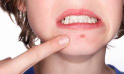Бородавки на лице: почему появляются эти дефекты