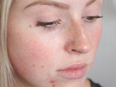 Демодекоз кожи лица: как эффективно вылечить