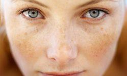Стрептодермия на лице: как избавиться от зудящих пузырьков