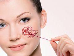 Сосудистая сетка на лице: основные симптомы появления и как избавиться