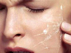 Что должны содержать успокаивающие маски для лица: основные ингредиенты