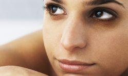 Темные круги под глазами: причины появления и как избавиться