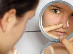 Как очистить поры лица: и зачем это делать регулярно