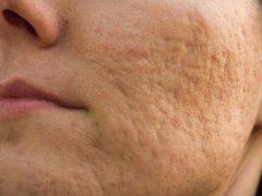 Шрамы на лице от прыщей: как избавиться от деффекта