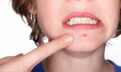 Фурункулы на лице: правильно лечим заболевания кожи