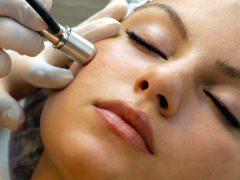 Лазерная коррекция кожи лица: длительное сохранение молодости