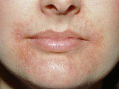 Дерматит на лице: как не допустить перехода в хроническую форму