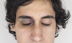 Гематомы на лице: как быстро избавиться